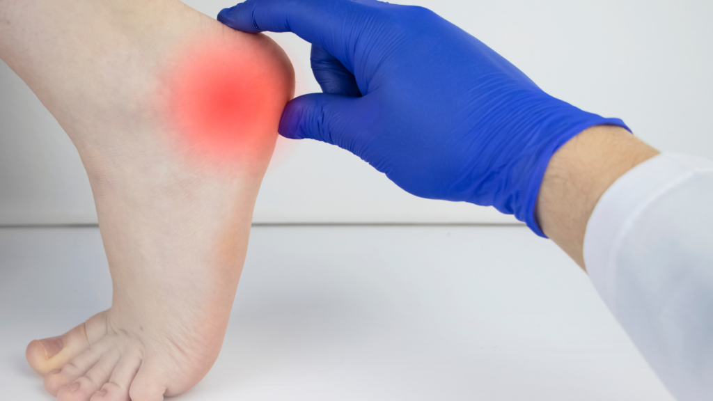 heel spurs surgery recovery time