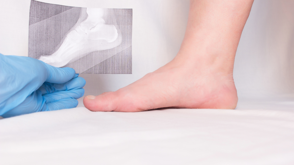 heel spurs surgery recovery time - causes