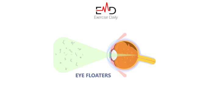 are floaters in the eye dangerous